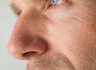 male rhinoplasty final cropped.jpg