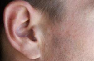 remember-your-ears-rotator.jpg