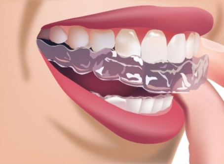Zahnkorrektur mit invisalign