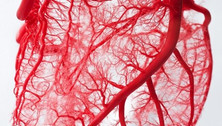 2.15.18+Complete+Revascularization+for+S