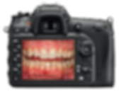 Digital Photography for patient oral health