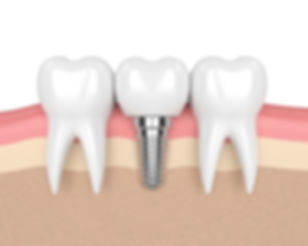 Dental Implant used to replace a missing tooth