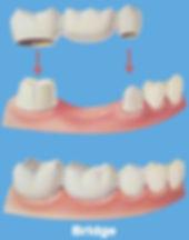 Dental Bridge Slave Lake Dental