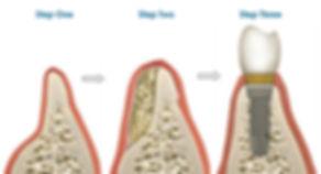 Bone Grafting Steps Dental Implant