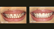 smile-makeover-horizontal.jpg