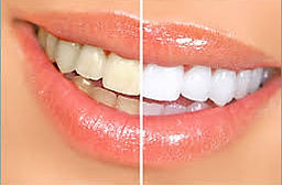 Teeth Whitening Before an After Image