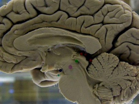 Penn Medicine Study shows just one head injury could raise risks of developing dementia years later.