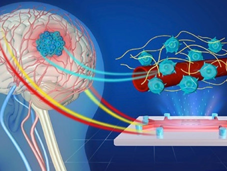 University of Cambridge works on new device to accelerate drug development to combat brain cancer.