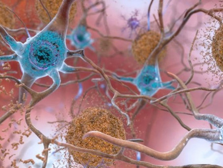 University of Cambridge Researchers target a 'shape-shifting' protein in Alzheimer's disease.