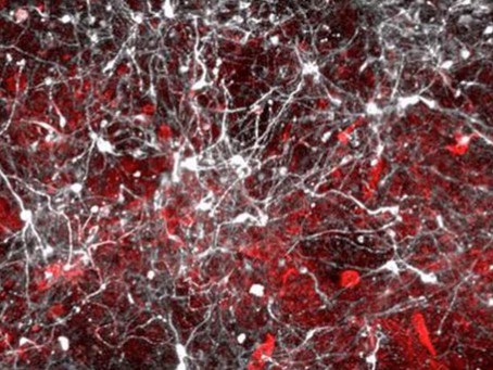 University of Cambridge study helps show what is wrong in the cells of people with Parkinson's.