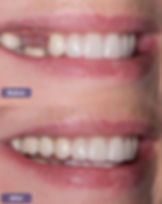dental-implant-1-1.jpg