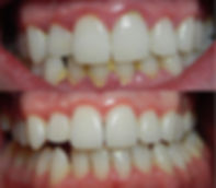 dental-plaque.jpg