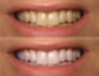 before-after-laser-teeth-whitening-in-Du