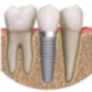 dental-implant-drawing.jpg