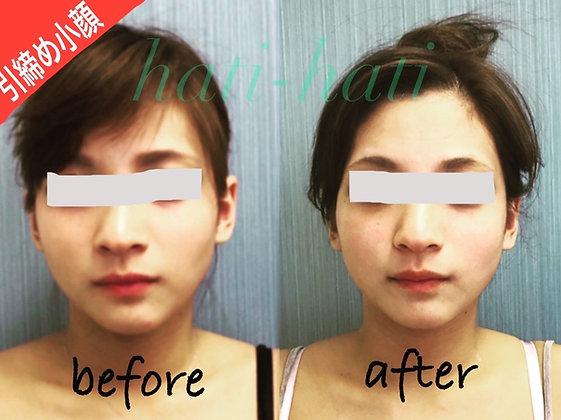 日常生活の些細な癖でバランスを崩してしまい、側頭骨が広がって顔が大きくなったり、むくんだり、代謝低下により脂肪が蓄積されやすくなっていきます。