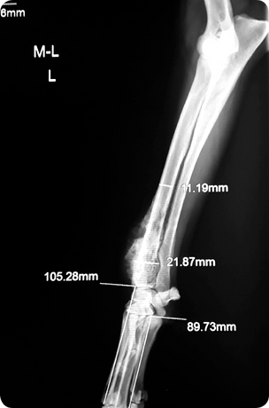 Osteosarcoma_02.png