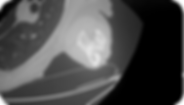Osteosarcoma_18.png