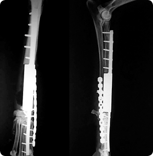 Osteosarcoma_05.png