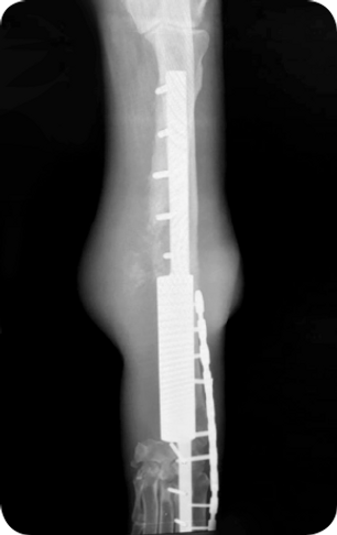Osteosarcoma_08.png