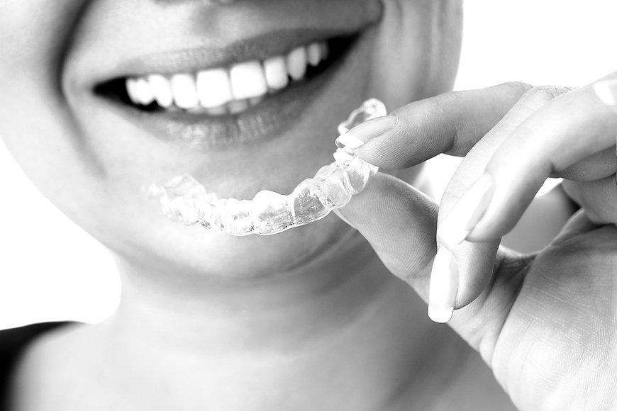 unique-smiles-invisible-braces_edited.jpg