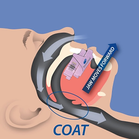 Sleep apnea appliance treatment