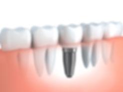 Dental implant below gums view