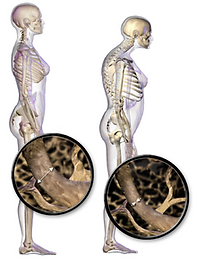 220px-Blausen_0686_Osteoporosis_01.png