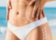 Tummy Tuck.png