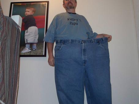 Erişkinde Obesite Cerrahisi