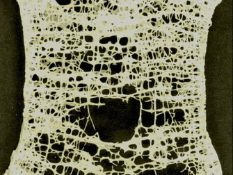 Steroid Kullanımının Neden Olduğu Osteoporozun Tedavisinde Bifosfonatlar