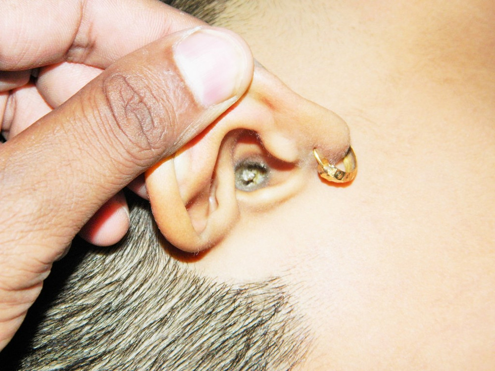 Kulak tıkacı. Foto: Anand2202 / Wikimedia Commons