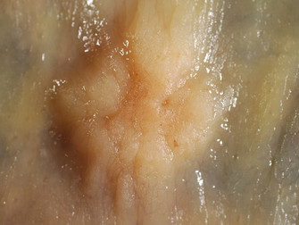 Kanda Karsino-Embriyonik Antijen Testiyle Kolorektal Kanser Nüksünü Belirlemek