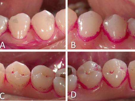 Periodontitis Tedavisi Görmüş Bireylerde Dişlerin Korunmasında Destekleyici Periodontal Tedavi