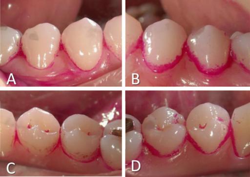 Solda PDT yapılmış, sağda kontrol dişler. Foto: Ichinose-Tsuno A, Aoki A, Takeuchi Y, Kirikae T, Shimbo T, Lee MC, Yoshino F, Maruoka Y, Itoh T, Ishikawa I, Izumi Y - BMC Oral Health (2014)