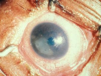 Kuru Göz Tedavisinde Otolog Serumdan Yapılan Göz Damlaları