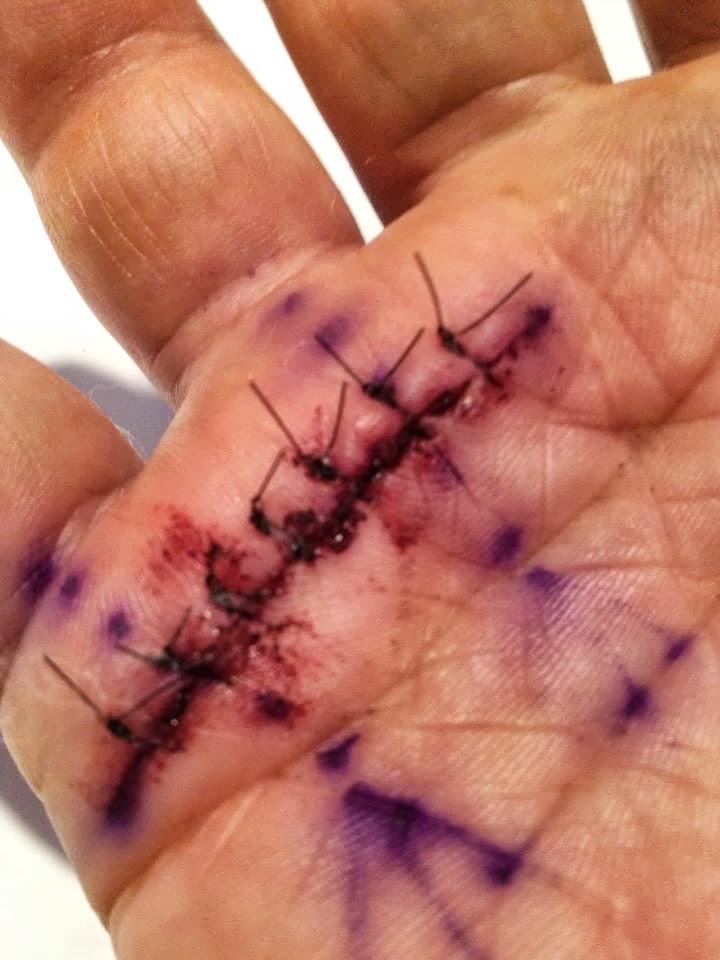 Tetik parmak, açık ameliyat sonrasında görünüm. Foto: Jonathan Eisen