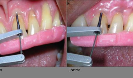 Kemik İçi Defektlerde Periodontal Doku Rejenerasyonu İçin Mine Matriks Türevleri (Emdogain®)