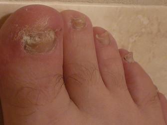 Ayak Tırnağında Mantar Enfeksiyonu İçin En İyi Tedavi Hangisi?