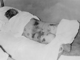 Kırım – Kongo Kanamalı Ateşi Tedavisinde Ribavirin