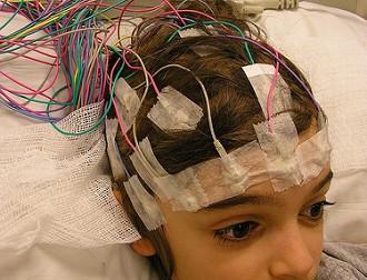 Epilepsili Çocuklar İçin Bakım Sağlama ve Kendini İdare Stratejileri