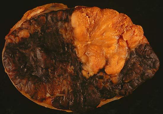 Lenf bezinde metastatik habis melanom. Foto: Ed Uthman, MD