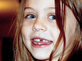 Çocuk Ve Ergenlerde Diş Çürüklerini Önlemek İçin Florlu Gargara Solüsyonları