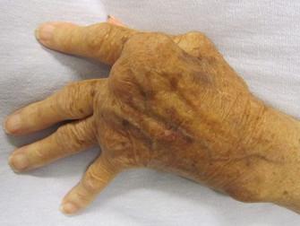 Romatoid Artritte Biyolojik İlaçlar Veya Tofasitinib