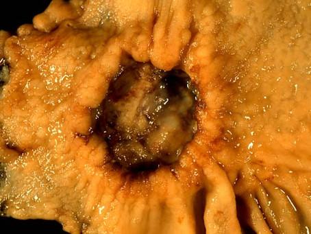 Mide Kanserinin Yayılımını Belirlemede Ultrason