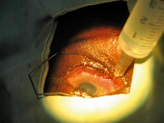 Katarakt Cerrahisinde Ağrı Kontrolü ve Daha İyi Cerrahi Koşullar Sağlamak İçin Topikal Anesteziye Ka