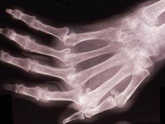 Romatoid Artritte Yalnız Veya Başka İlaçlarla Kombine Metotreksat