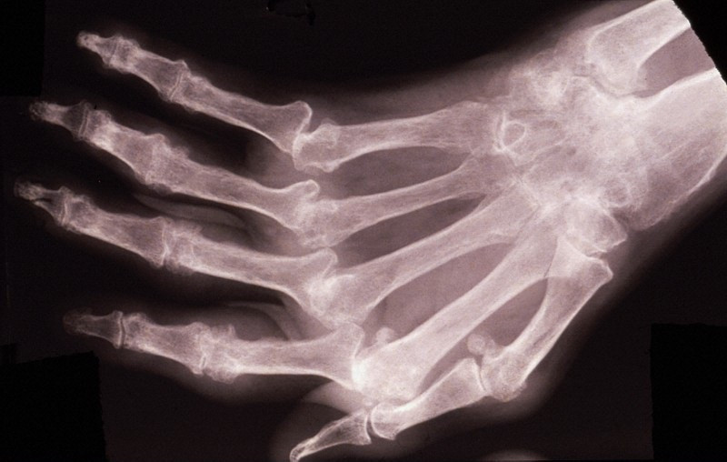 Foto: Wellcome Images, Wellcome Images. Rheumatoid arthritis