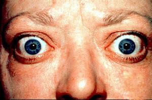 Graves Hastalığı ve Graves Oftalmopatisinde Tiroid Cerrahisi