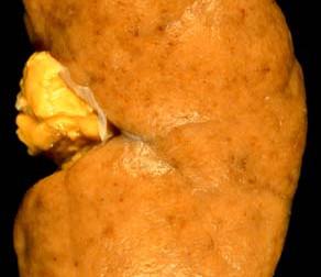 Proliferatif Lupus Nefriti Hastalarında İmmünosupresif Tedaviler