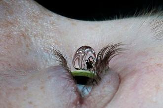 Hastaların Yüksek Göz İçi Basıncı Veya Glokom İçin Göz Damlalarını Yazıldığı Gibi Kullanmalarına Yar